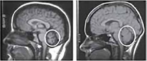 MRI improvement in an Ataxia patient treated with stem cells.