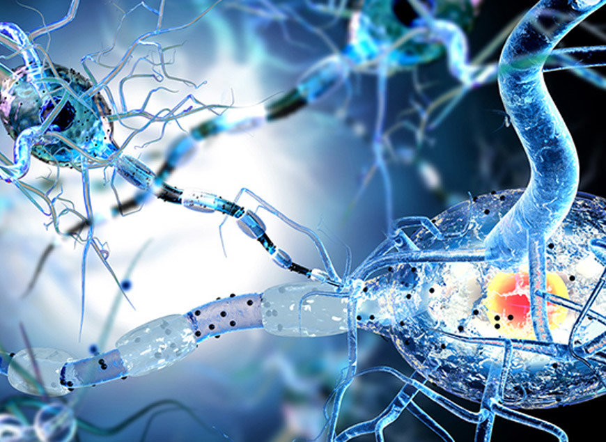 Global Stem Cells - Multiple Sclerosis